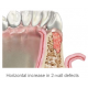 Periodontal regeneration in intraosseous and 2-3 wall furcation defects